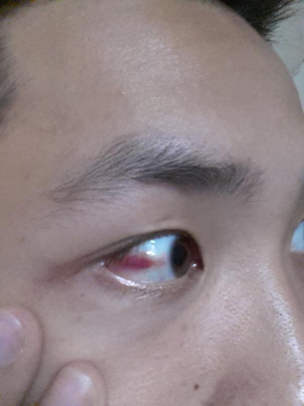 小孩子眼睛有红血丝_眼睛里有红血丝_宝宝眼睛里有红血丝_淘宝助理